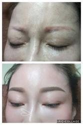 eyebrow reborn treatment 眉毛重生术